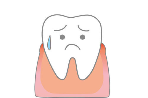 EDには歯周病が多い!!